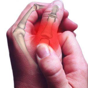 артрит, сърце и болки